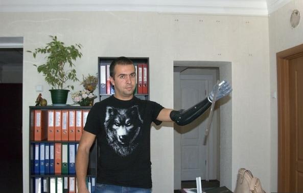 Трем бойцам из Украины, которые потеряли руки на войне, в Италии поставили миопротезы