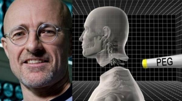 Итальянский медик уверяет, что операция по пересадке головы может стать реальностью