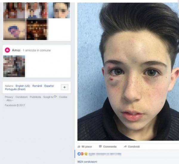 Итальянец выступил против избиения детей хулиганами